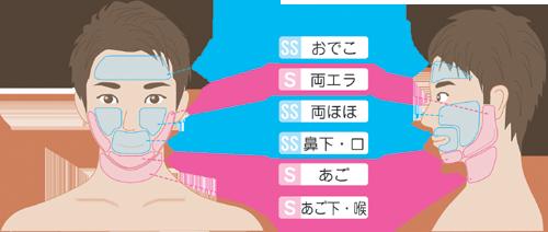 桜のメンズ ヒゲ脱毛
